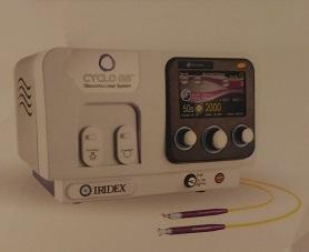 微脈衝青光眼雷射治療儀