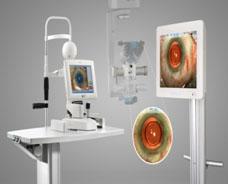 Verion影像導引系統