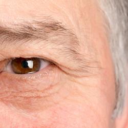 青光眼-視力的無形殺手