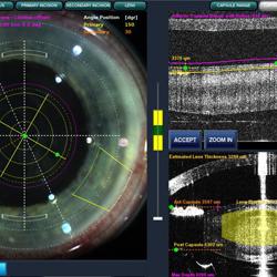 葡萄膜炎- 眼球內的發炎