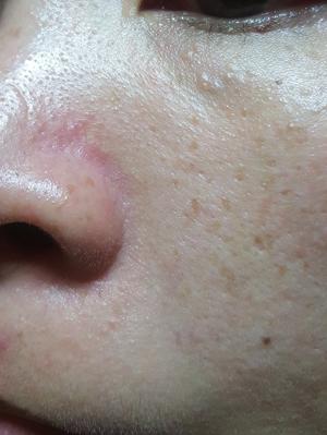 【敏感肌膚有感推薦】三天就有明顯退紅消炎的情況